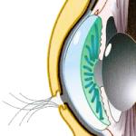 Können Kontaktlinsen hinter das Auge rutschen?
