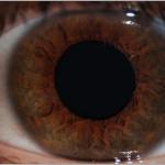 Die Iris des menschlichen Auges – einfach faszinierend
