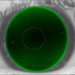 Kontaktlinsenanpassung im Jahr 2010 – Angenehmes Tragen und schnelle Ergebnisse
