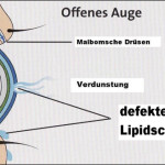 Defekten Tränenfilm durch Liposome verbessern – Gegen trockene Augen